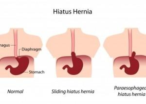 Hiatal-Hernia-in-Three-Parts-390x279